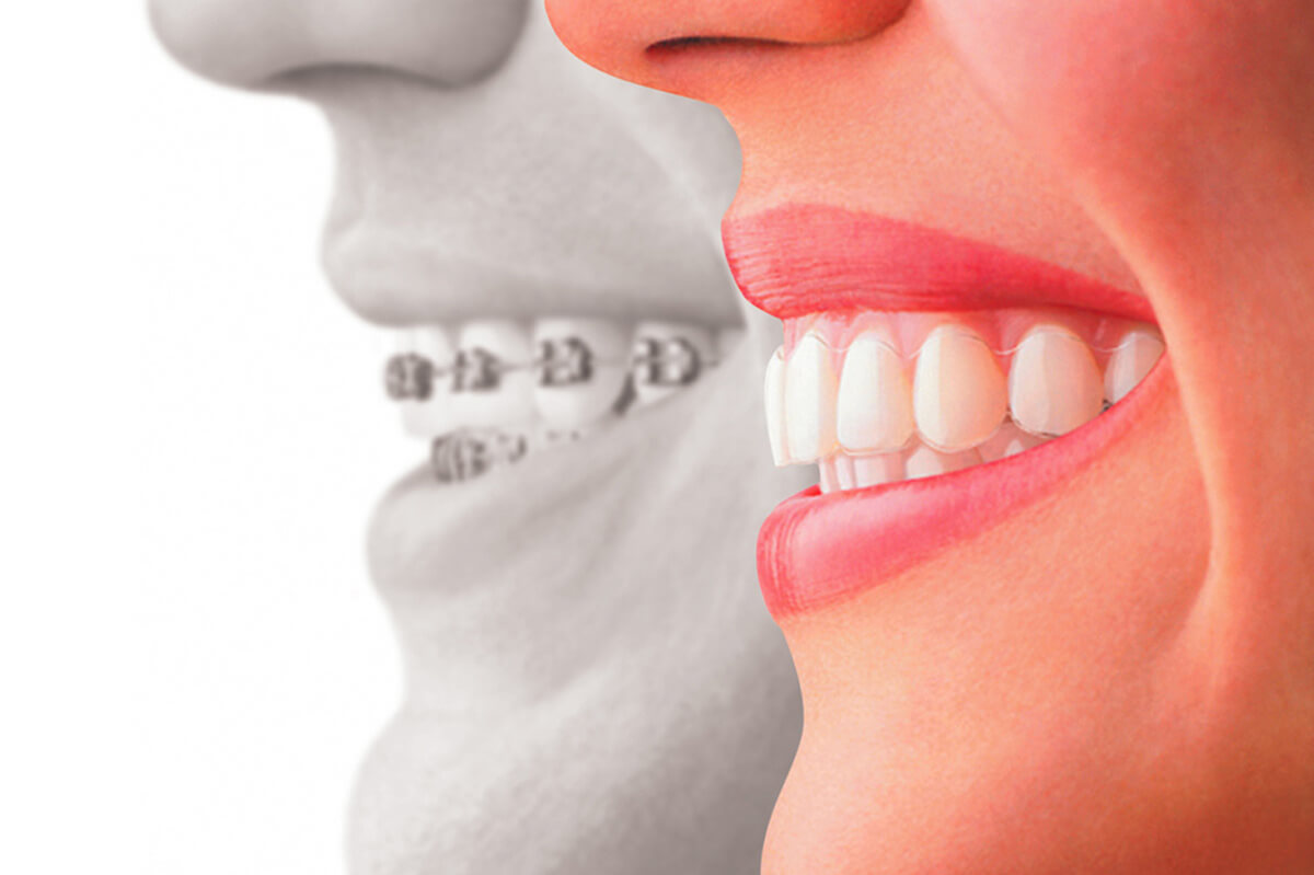 The 5 Best Ways to Keep Your Invisalign Aligners Clean