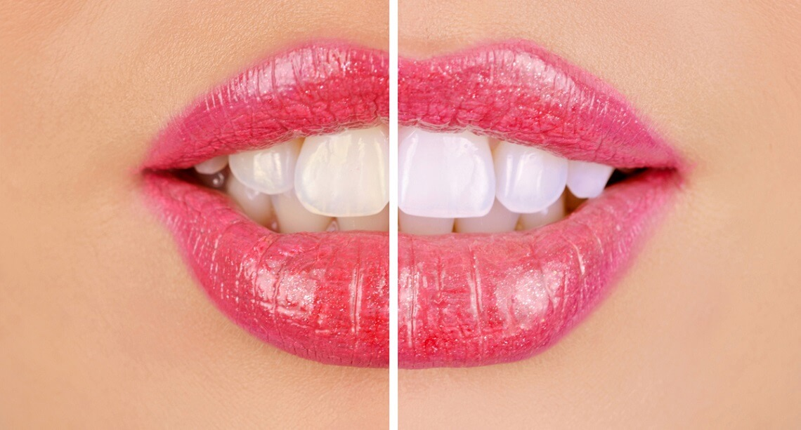 The Top 4 Teeth Whitening Options
